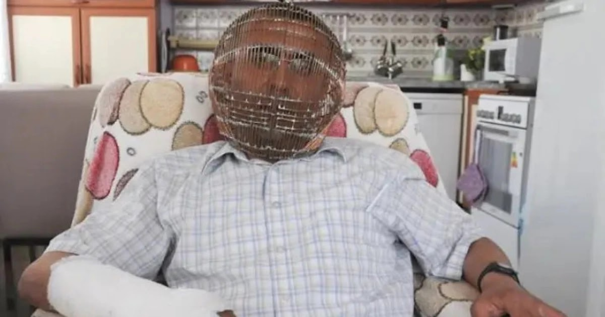 Man In Turkey Locks His Head In A Cage In Order To Quit Smoking