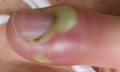 علاج الأصابع المتقيحة والمصابة بالدحاس