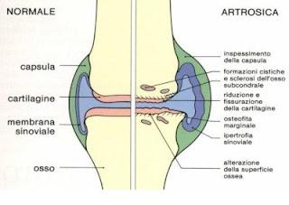 Artropatia Degenerativa o DJD (Degenerative Joint Desease)