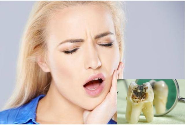 7 Cara Mengobati Sakit Gigi Berlubang Paling Ampuh