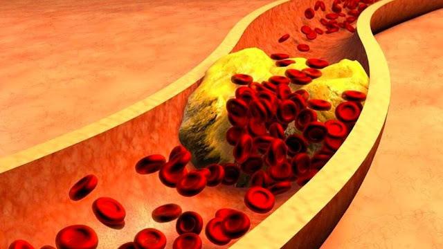 اعراض ارتفاع نسبة الكولسترول في الدم