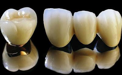 răng sứ có thời gian bảo hành bao lâu -3
