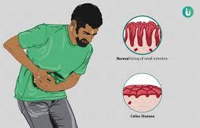 What is Celiac Disease ?