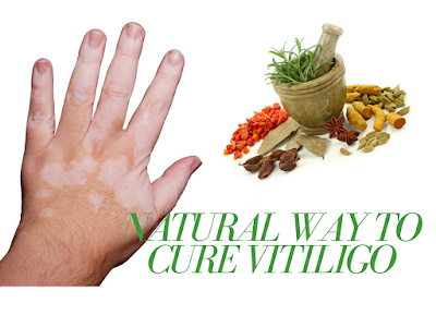 Ayurveda Treatment for Vitiligo  in India