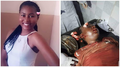 heartbreaking Photos; 100level UNIBEN Student Dies After Being Raped