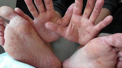 اسباب الحمى القلاعية عند الإنسان واعراضها وطرق علاجها
