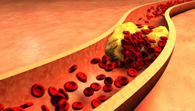 Cara Menurunkan Trigliserida Kolesterol Dan Asam Urat Dengan Cepat
