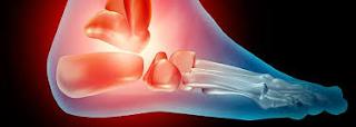 Artrose no Tornozelo