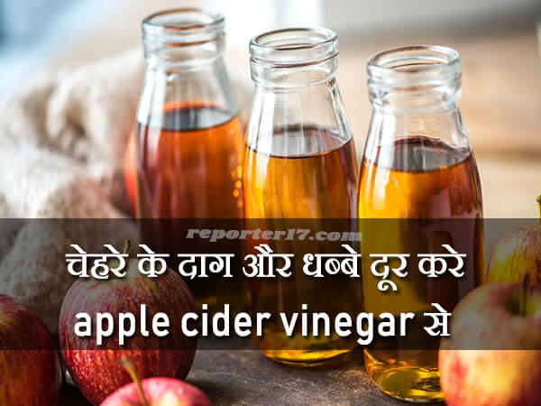 Apple Cider Vinegar For Remove Pimple Marks