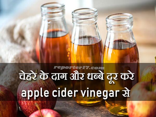 Apple Cider Vinegar For Remove Pimple Marks