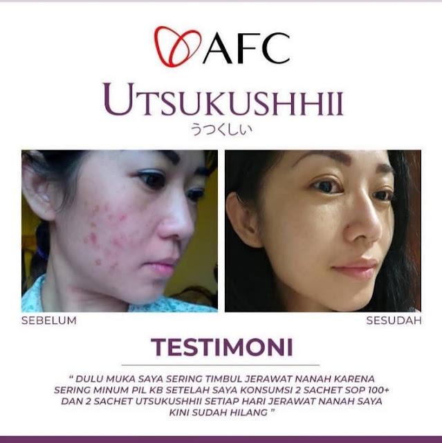 utsukushii bara, utsukushii beauty and skin center, utsukushii benefits, utsukushii bpom, utsukushii brand review, utsukushii collagen, utsukushii conjugation, utsukushii cosmetics, utsukushii covid, utsukushii dan sop 100, utsukushii dan subarashii,