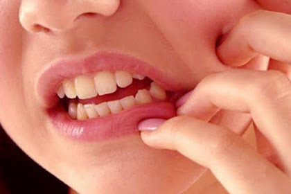 5 Powerful Ways To Treat Your Toothache