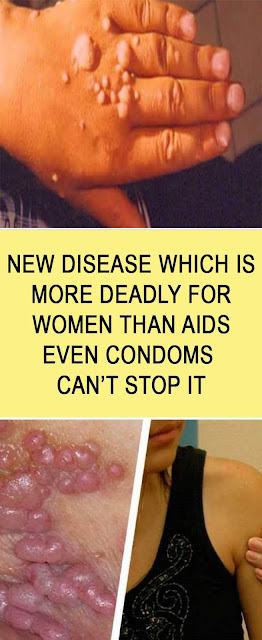 A New Disease Which Is More Deadly For Women Than Aids, Even Condoms Can`T Protect You