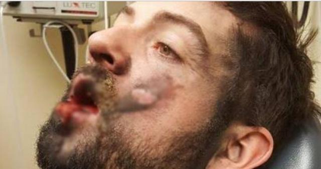 شاب يخسر اسنانه وفكه بسبب السيجاره الاليكترونيه