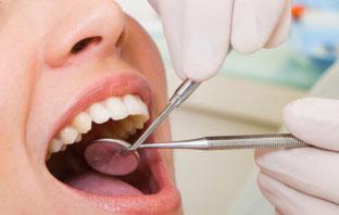 سعر زراعة الاسنان في المهيدب
