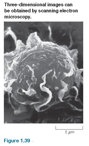 Scanning electron microscopy Scanning electron micrograph of a macrophage.