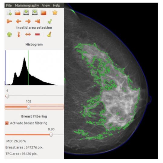 FISABIO, UPV y el Instituto Carlos III acuerdan con el ITI la distribución gratuita del software de estimación del riesgo de padecer cáncer de mama DM-Scan