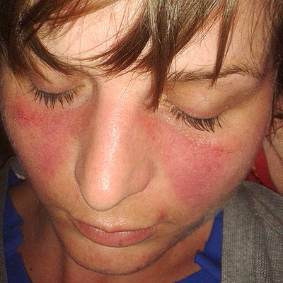 Young woman with the typical butterfly rash found in lupus