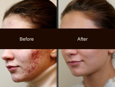 Laser Acne Scar Removal Treatment Cost Benefits And Types