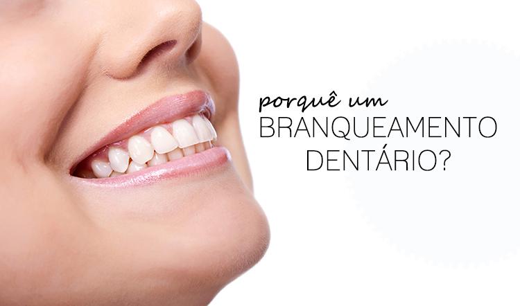 branqueamento dentario