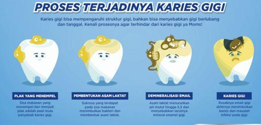 Proses terjadinya gigi berlubang/karies