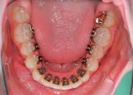 Niềng răng mặt trong thực hiện như thế nào?