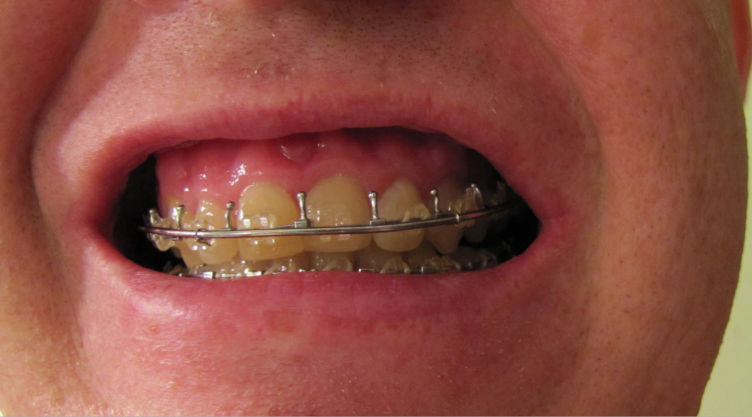 Wiring Jaw Splints Data Repo Projects F Fsrledseries Images Fsr Light Breadboardjpg Double Operation The Road To Recovery Rh Doublejawoperation Com Types Of Bruxism Splint