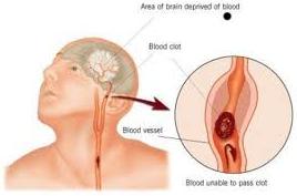 Pengobatan terapi lintah Atasi penyumbatan darah