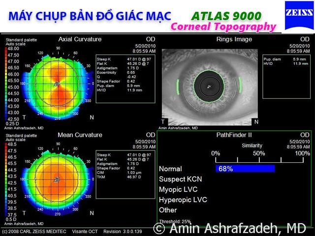 Bản đồ giác mạc Atlas 9000 Zeiss - Đức