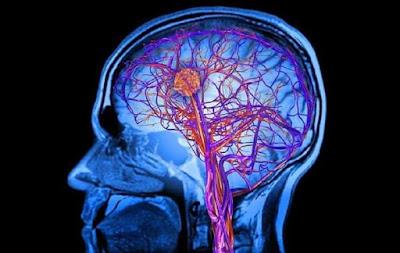 Kenali gejala kanker otak dan cara mengatasinya