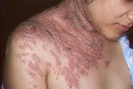 Cara Mengobati Herpes Secara Permanent