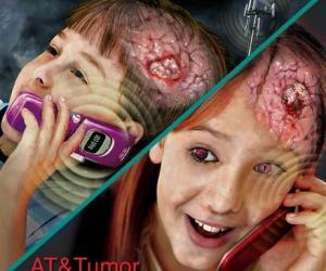 """Antenat celulare, bartëse dhe përcjellëse të rrezatimit radioaktiv """"vrasës"""" në organizëm"""