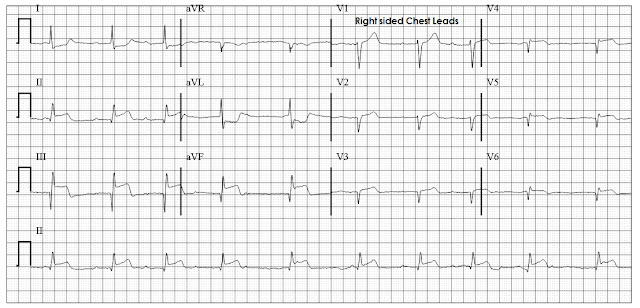 Inferior wall MI with RV infarction on right sided chest leads