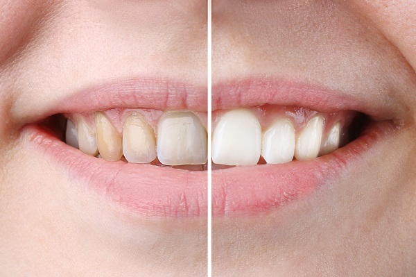 Compare Natural Teeth Bleaching with Teeth Whitening from Dentists