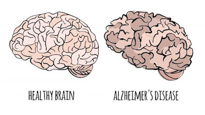 alzheimer treatment