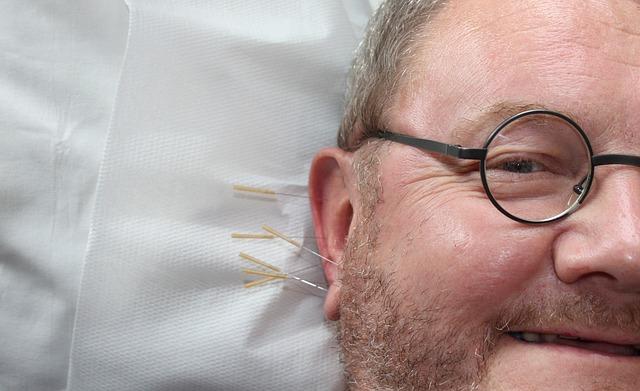 akupuntur