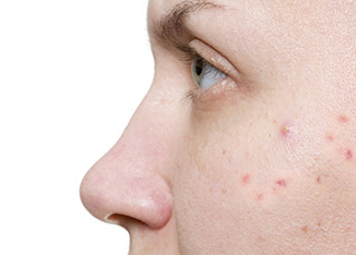 Natural-acne-treatment-options-and-home-remedies