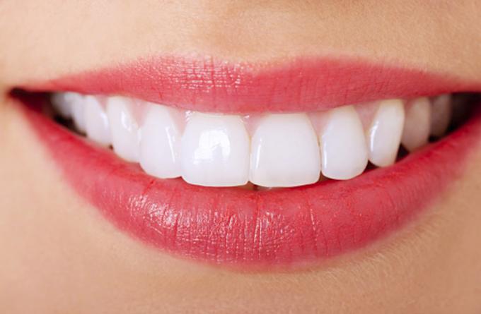 दाँत पहेँलो हुने, सड्ने, कालो हुने समस्या छ भने यसरि बनाउनुहोस सुन्दर