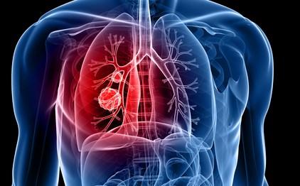 makanan-untuk-penderita-flek-paru-paru