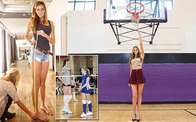 Η 22χρονη με τα ατελείωτα πόδια δεν μπορεί να κάνει καριέρα στο μόντελινγκ