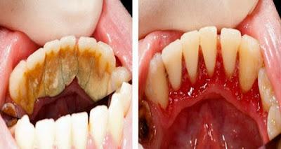Cara Instan Rontokan Karang Gigi Dalam 5 Menit