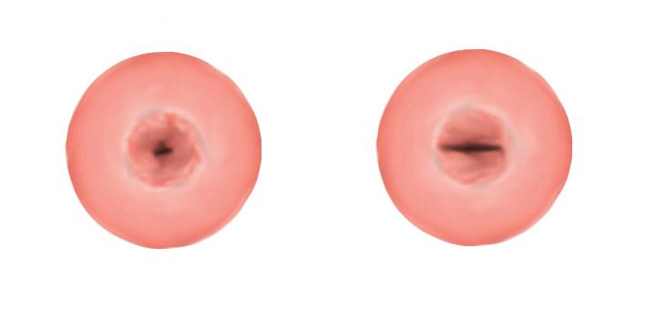 [Ilustracja szyjki macicy przed i po porodzie siłami natury]