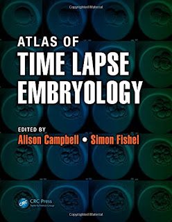 Atlas of Time Lapse Embryology 1st Edition