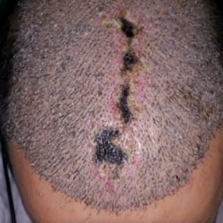 تفكر بزراعة الشعر ادخل للضرورة %D8%A7%D9%84
