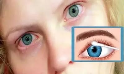 علاج التهاب جفن العين طبيعيا