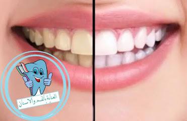 اصفرار الاسنان،علاج اصفرار الاسنان الداخلي،علاج اصفرار الاسنان طبيعيا،علاج اصفرار الاسنان والجير،ما سبب اصفرار الاسنان من الداخل،ما هو سبب اصفرار اسناناسباب اصفرار الاسنان،طريقة تنظيف الاسنان من الاصفرار،سبب اصفرار الاسنان،ازالة اصفرار الاسنان،صفار الاسنان،للتخلص من اصفرار الاسنان نهائيا،علاج صفار الاسنان،اسباب صفار الاسنان،أسهل طريقة لعلاج اصفرار الأسنان في 4 خطوات فقط،اسباب اصفرار الاسنان المفاجئ،التخلص من اصفرار الاسنان،لتبيض الاسنان من الاصفرار،ما سبب اصفرار الاسنان،كيف انظف اسناني من الاصفرار،سبب صفار الاسنان،صفار الاسنان الشديد،ازالة الاصفرار من الاسنان،اصفرار اسنان الاطفال ،سبب اصفرار الاسنان عند الاطفال،كيف ازيل اصفرار الاسنان،كيفية التخلص من اصفرار الاسنان،تنظيف الاسنان من الاصفرار،أسباب اصفرار الاسنان،كيفية ازالة اصفرار الاسنان،طريقة ازالة اصفرار الاسنان،اصفرار الاسنان بعد التبييض،علاج اصفرار الاسنان مع التقويم