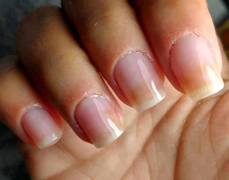 Things Your Nails Reveal About Your Health