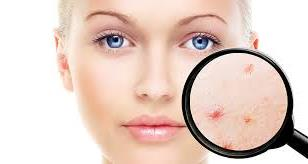 What Can You Do to Cure or Alleviate Acne?