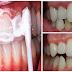 TAK PERLU BIAYA MAHAL..!!! Bilas Gigi Anda dengan Campuran Ini dalam 5 Menit Tartar dan Plak Hilang dari Gigi Anda dan Nafas Pun Jadi Wangi !