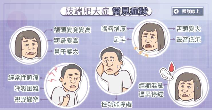 肢端肥大症常見症狀